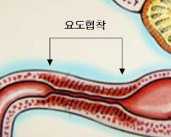 (19) (가입기념썰) 나 비뇨기과에서 요도 확장 당한 썰